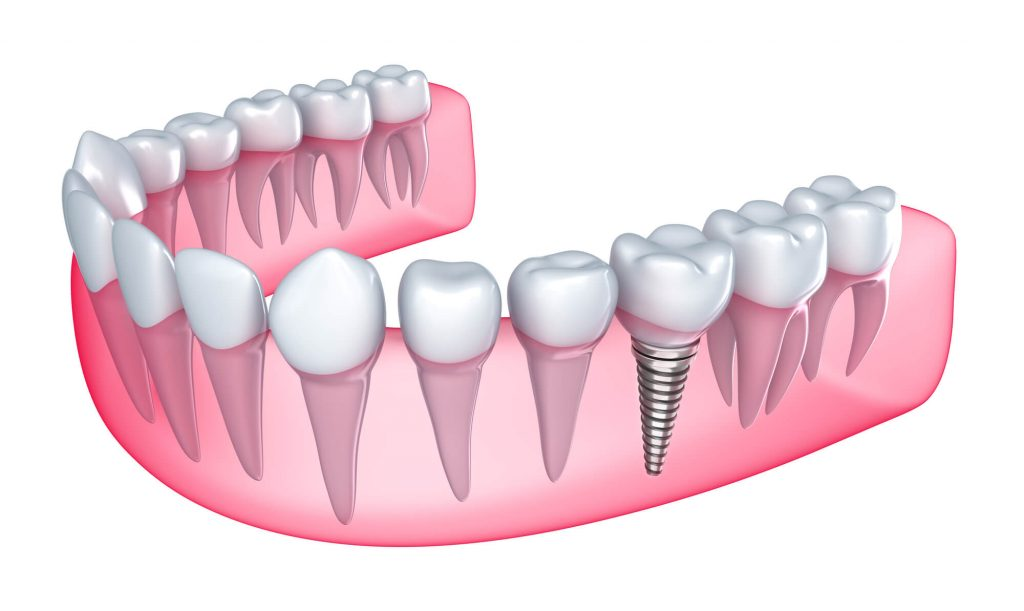 What are the best florida dental implants?