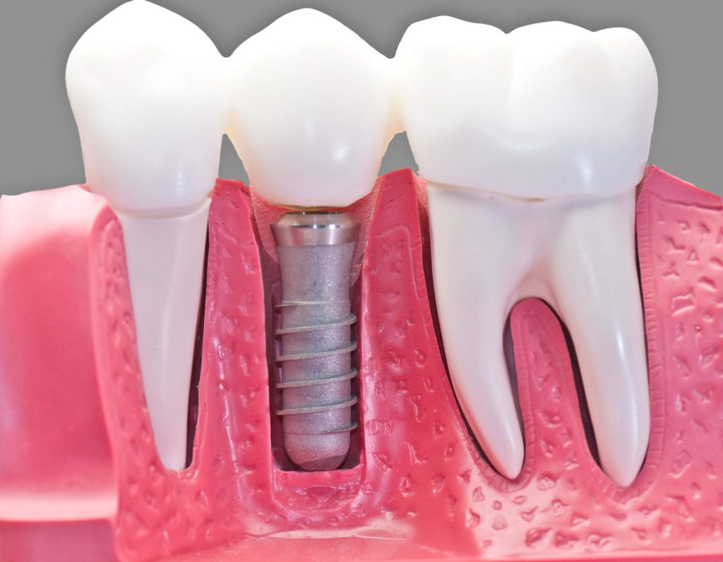 What are treatment options florida dental implants?